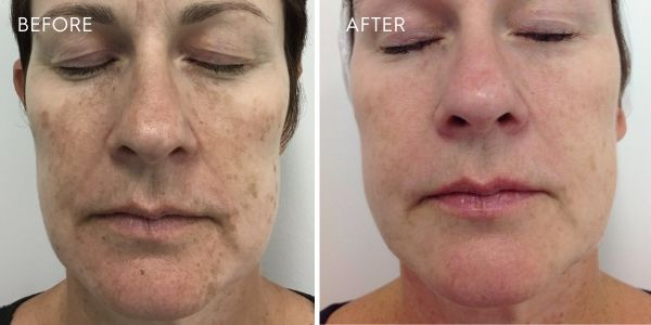 laser for pigmentation face results