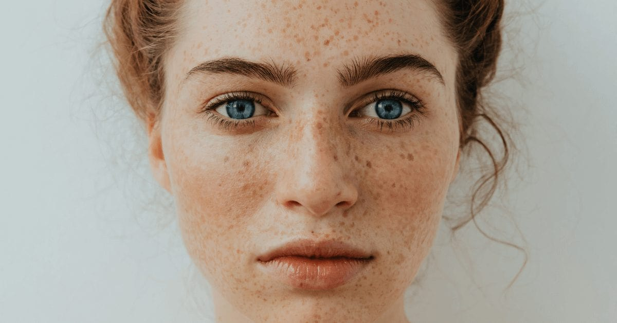 5 facts about freckles