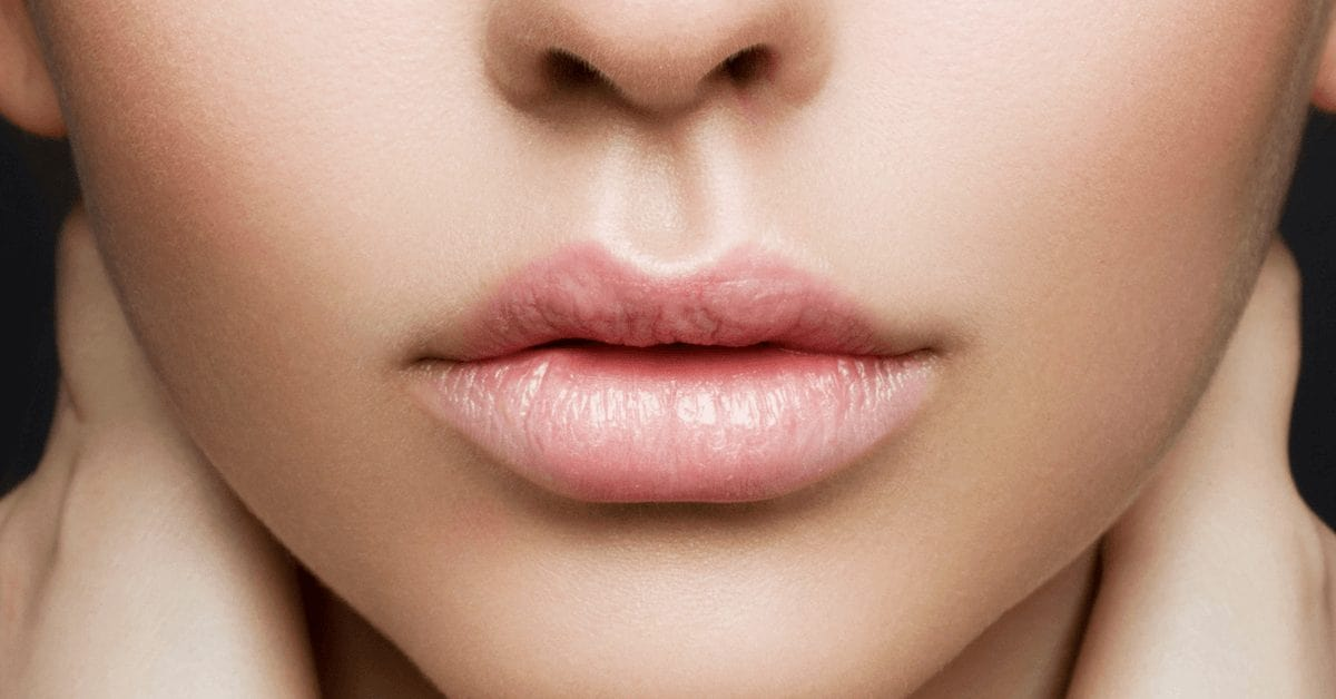 7 Lip Filler before & afters you have to see | Australian