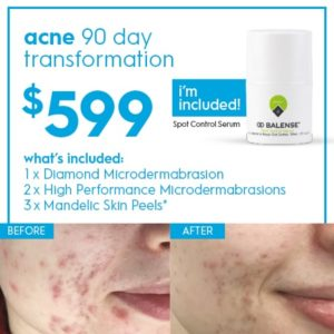 Acne 90 Day transformation $599