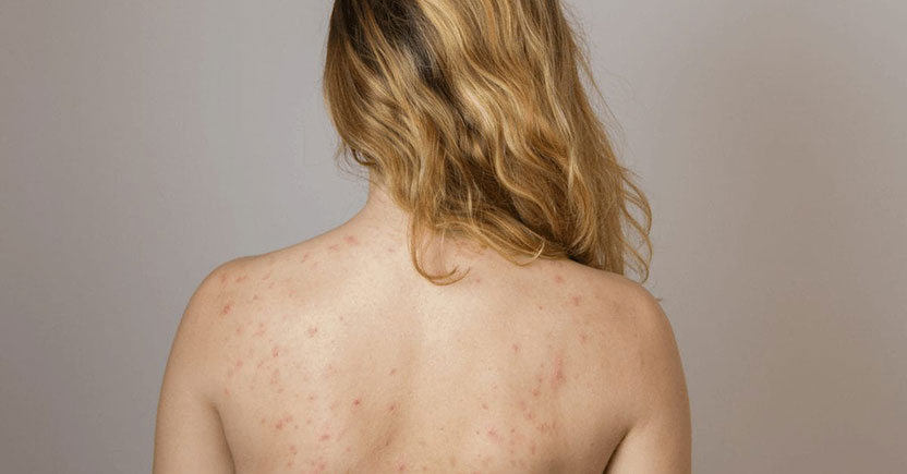Acne Scarring and How to Treat It-min