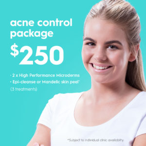 Acne control package deal