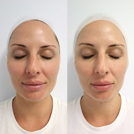 O2 Oxygen Medi-Facial Before and After
