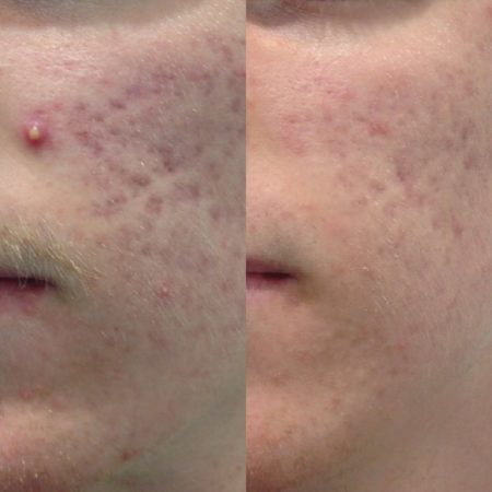 Before and After treatment by HP Microdermabrasion