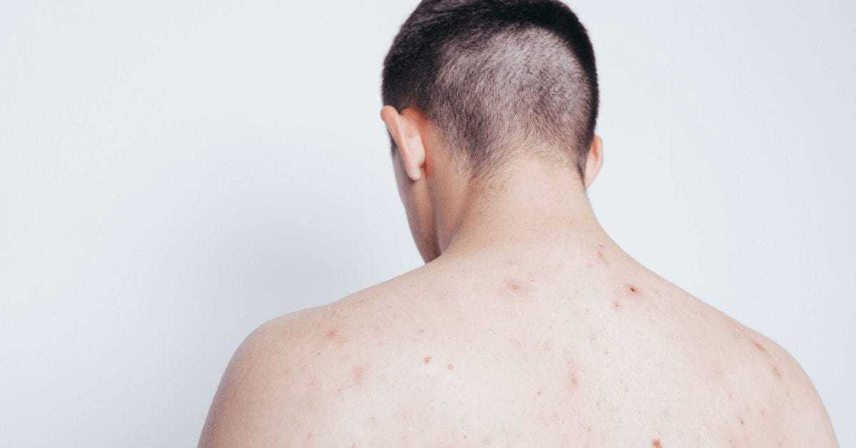Back-acne-common-causes-and-how-to-treat-it