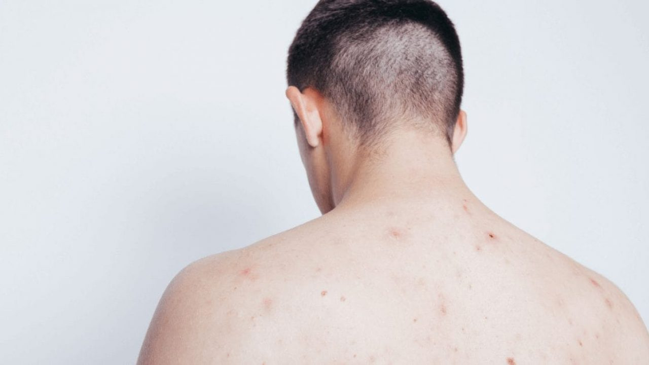 Back Acne Common Causes And How To Treat It Australian Skin Clinics