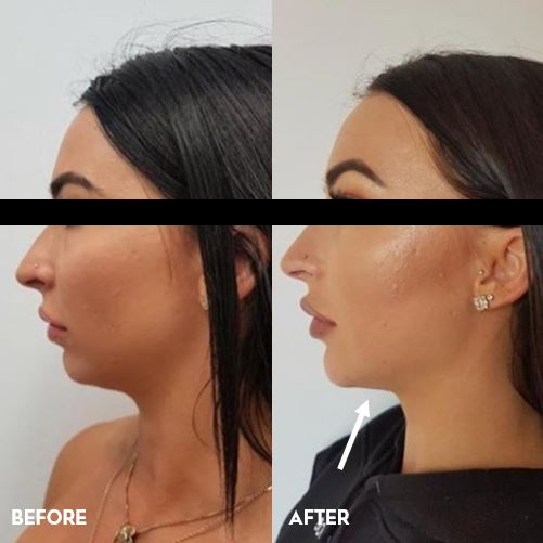 Chin sculpting v  Jaw sculpting (with pictures) | Australian