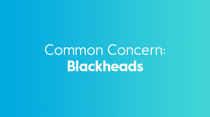 Blackheads and how to treat