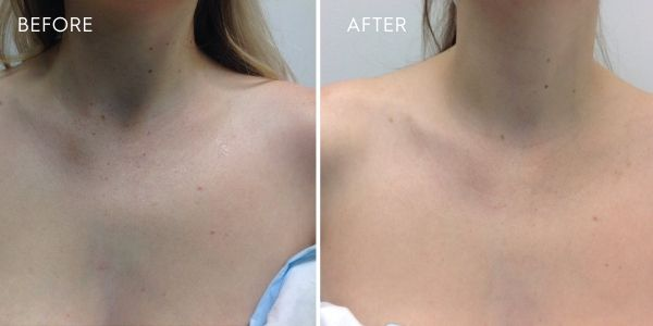 laser for pigmentation chest results