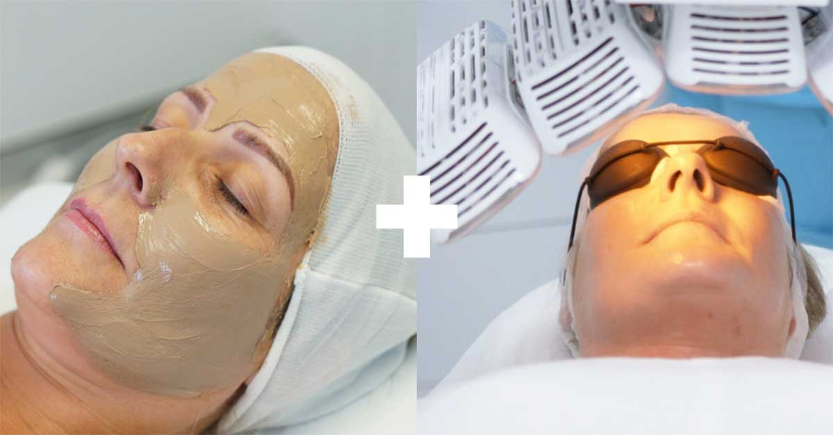 Cosmelan and LED Light Therapy