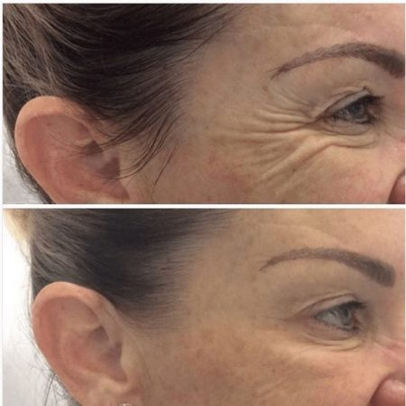Crows Feet before and after cosmetic injectables