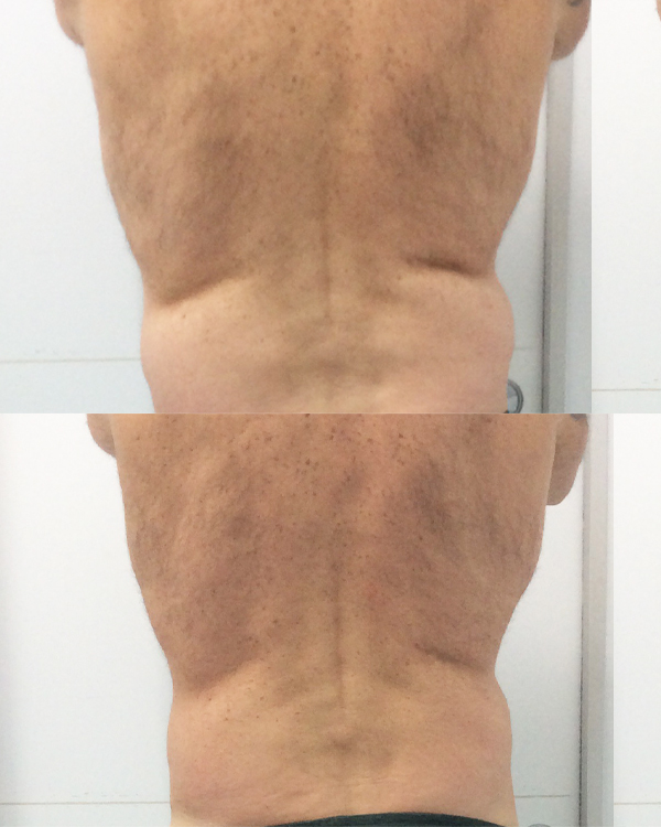Cryo-Back-(before+after)