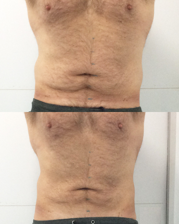 Cryo-Front-(before+after)