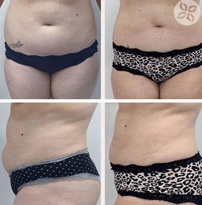 Coolsculpting Cryodefine Fat Freezing Treatment Liposuction Before and After Results