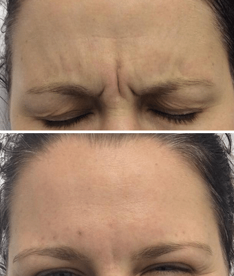 before and after results of anti wrinkle injections forehead