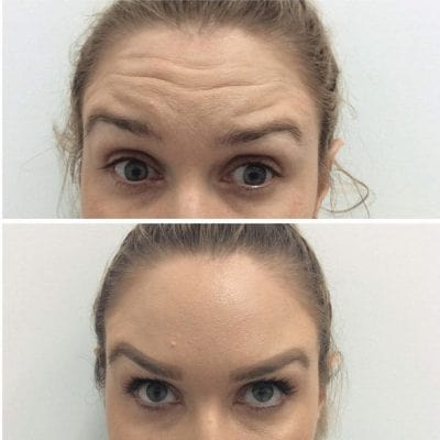 before and after results of anti wrinkle injections on your forehead