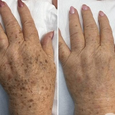 laser for pigmentation, freckle removal and sun spots