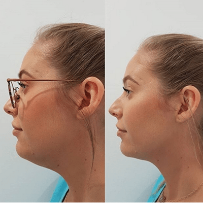 chin sculpting Injectable before and after image
