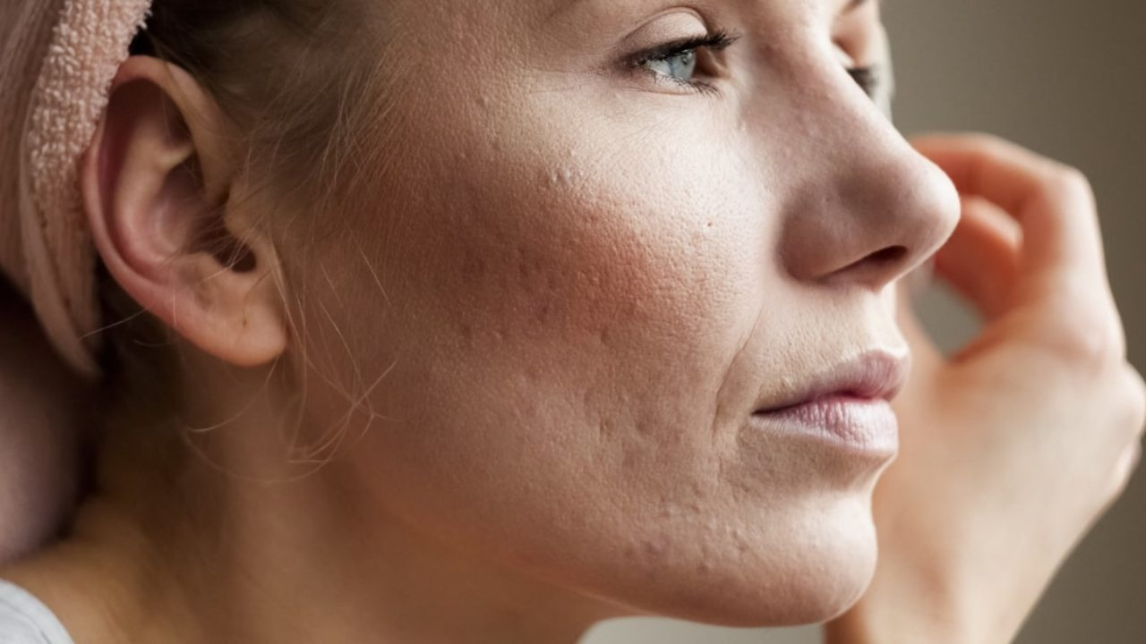 Acne Scarring And How To Treat It Australian Skin Clinic
