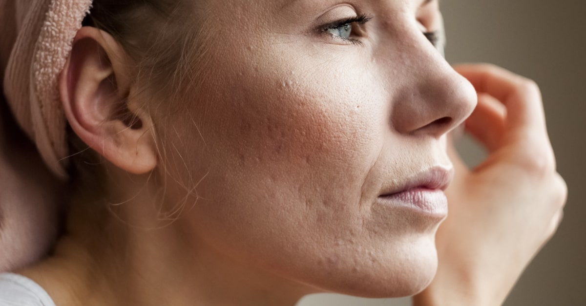 acne scarring female