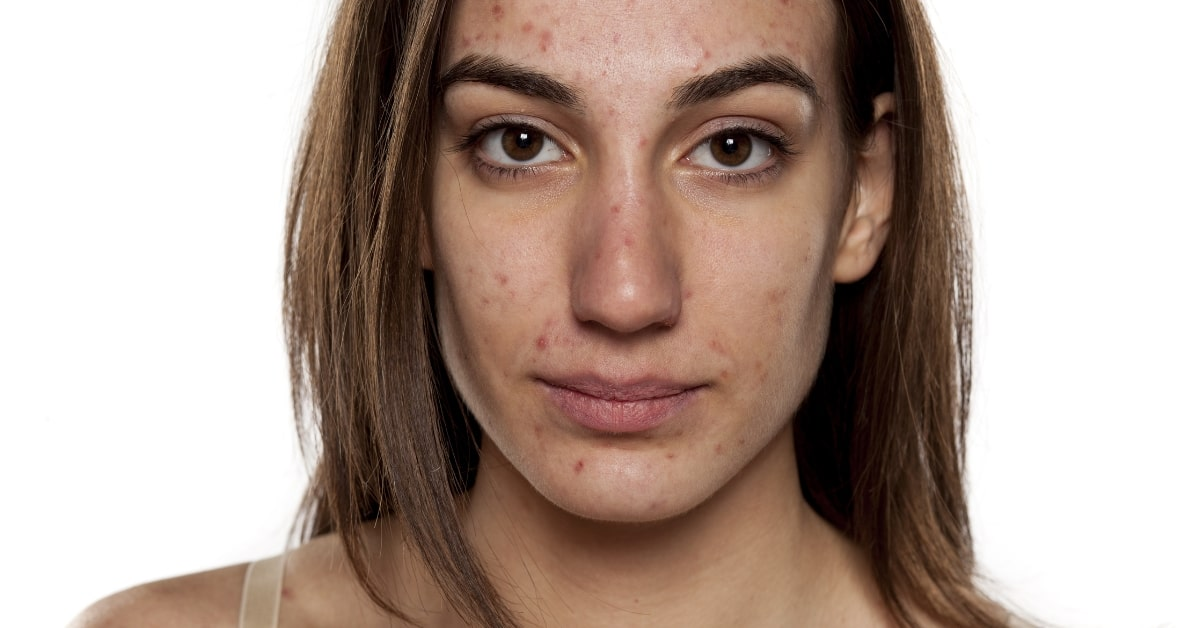 adult acne female