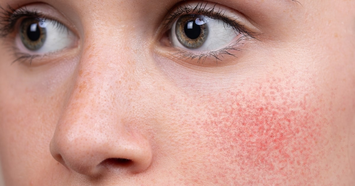 treatments for rosacea