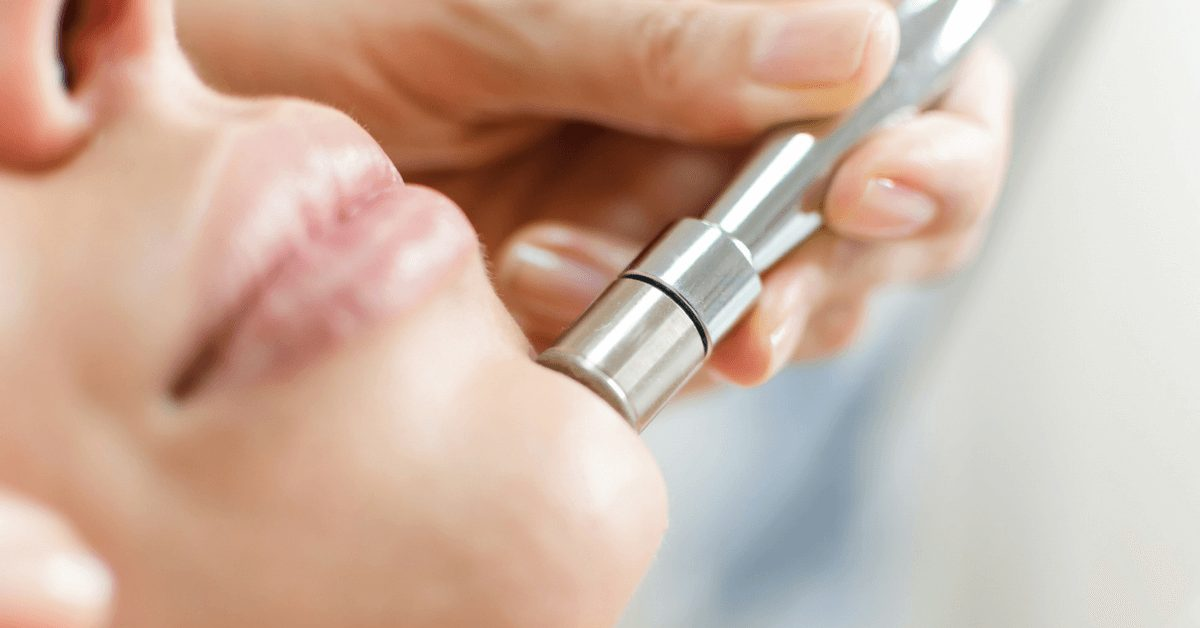 Microdermabrasion Myths