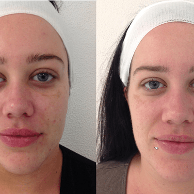 Skin-Needling Results on face