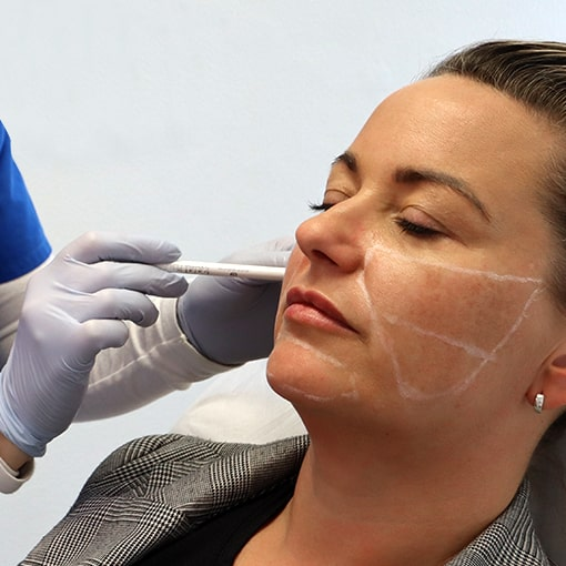 Womans face being marked up Hydra Filler treatment