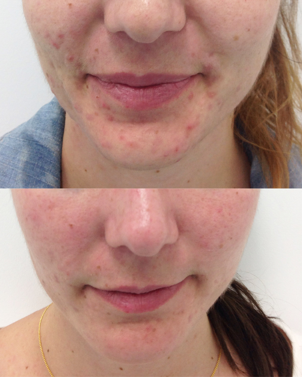 LED-Light-Therapy-Front-Chin-(before+after)