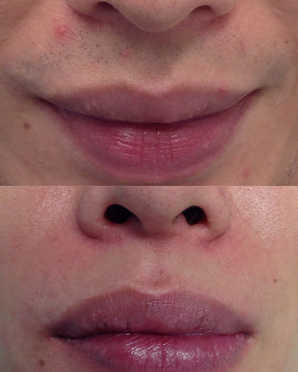 Laser-Hair-Removal-Lip-Chin-(before+after)