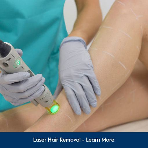 Experts in Laser Hair Removal
