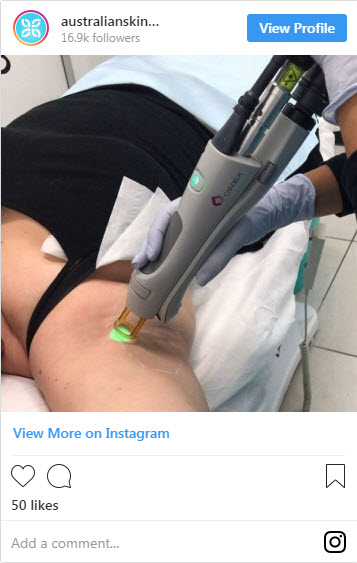 10 Things You Need to Know About Laser Hair Removal