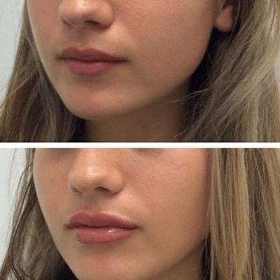 Lip Filler Before and After Results