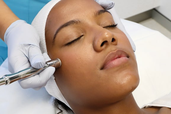 microdermabrasion glow deluxe