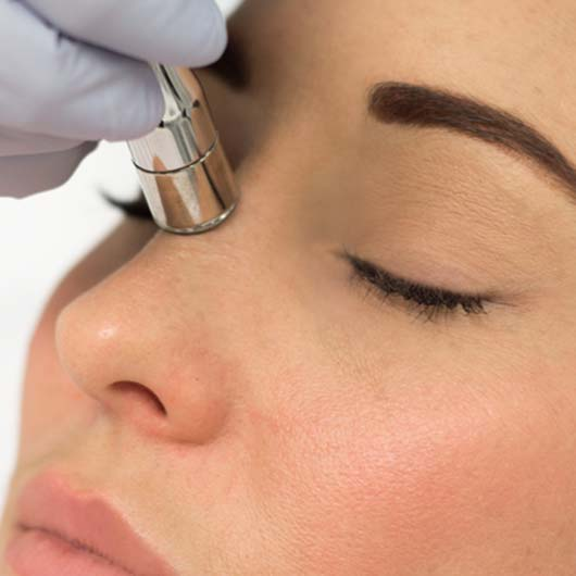 skin care clinic microdermabrasion