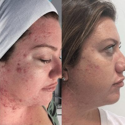 Microdermabrasion Treatment Before and After Results