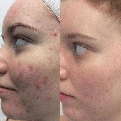 Microdermabrasion results before & after
