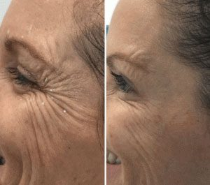befoe and after cosmetic injectables