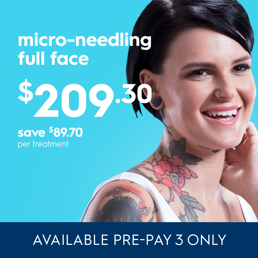 Micro-Needling full face on sale in October