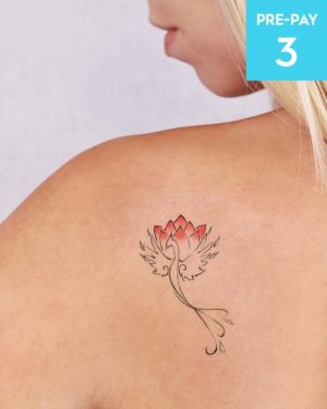 Laser Tattoo Removal 4cm 3 pack