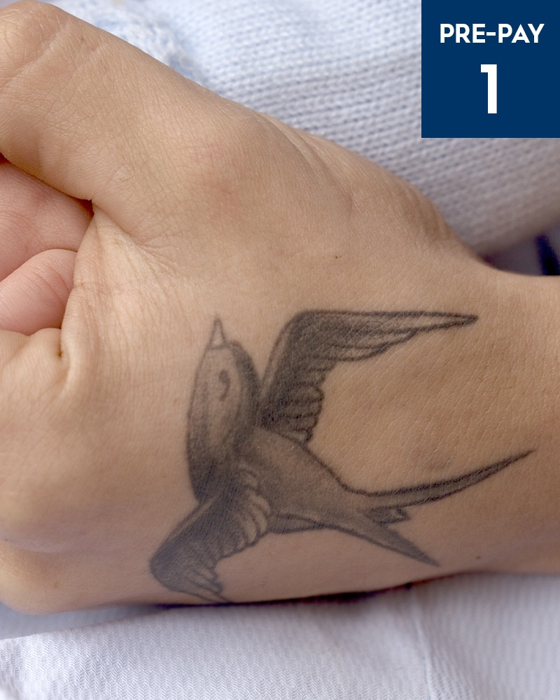 Laser Tattoo Removal Shellharbour ...