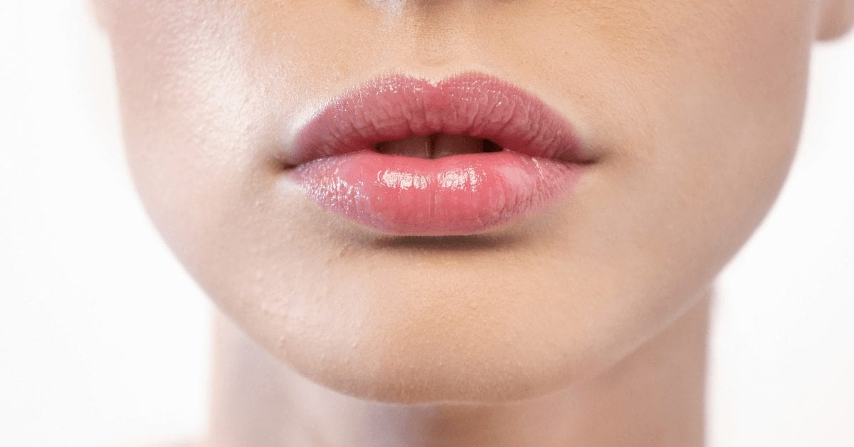 How to care for your lips after dermal filler | Australian