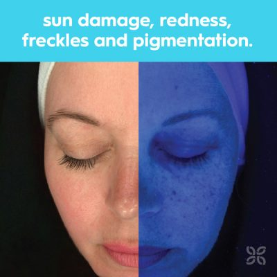identify sun damage, redness, freckles and pigmentation