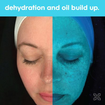 find dehydrated and oil build up on your skin