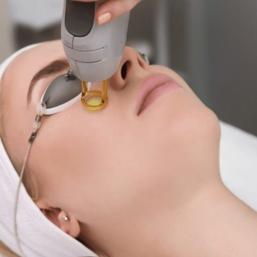 Laser treatment for skin