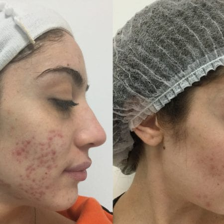 micro needling before and after results