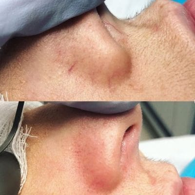 Laser for vein removal face