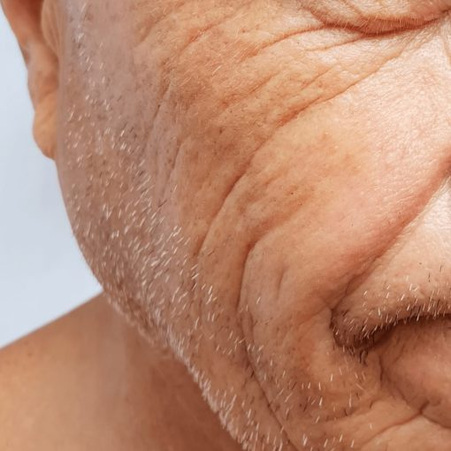 male lines and wrinkles